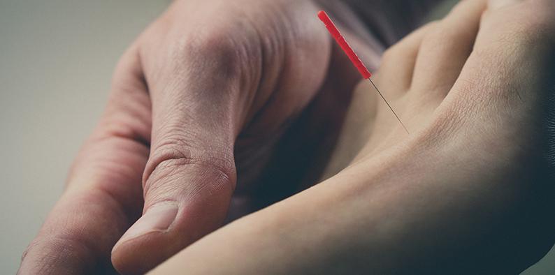 Akupunktur Anwendung
