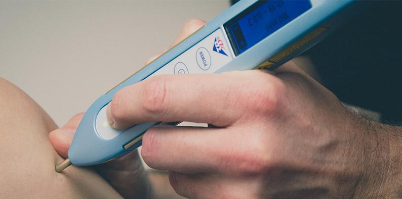 Laser Akupunktur Anwendung
